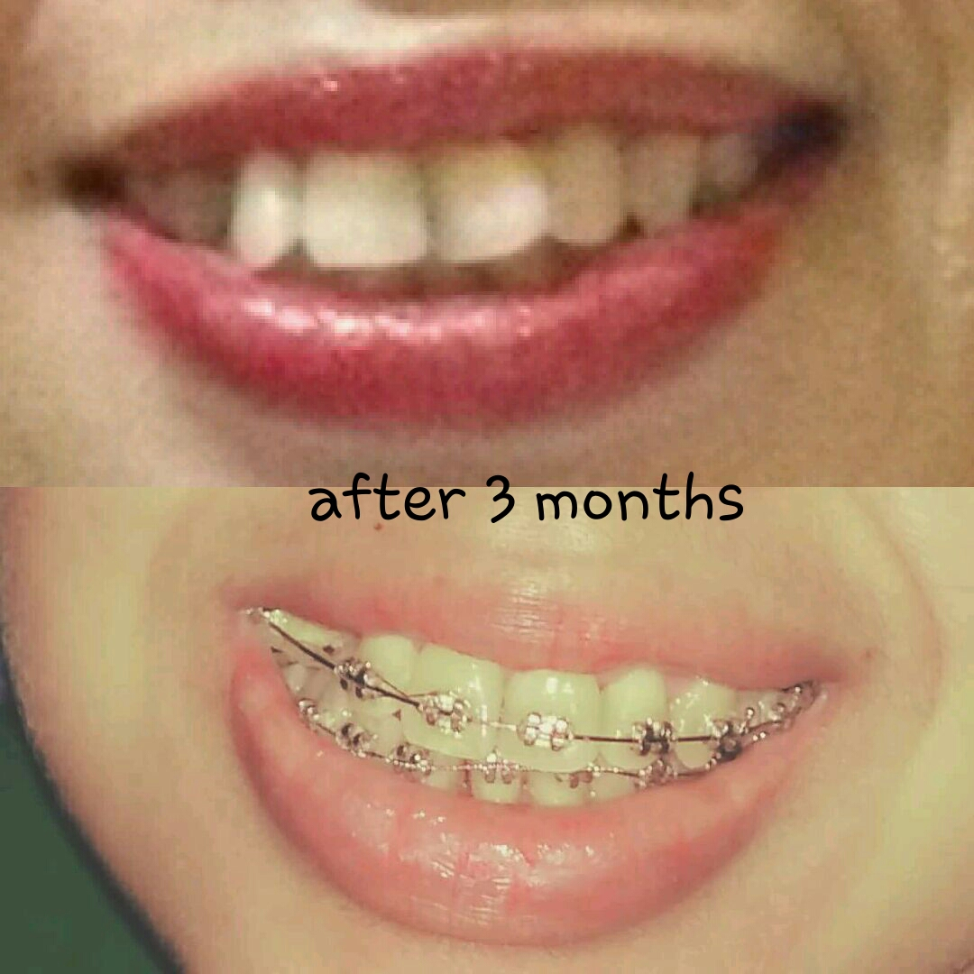 Berikut foto gigi sebelum dan setelah pemasangan kurang lebih 3 bulan (gigi  atas) dan 3 minggu (gigi bawah). 3ed1b09842
