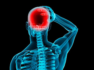 Pseudo Tumor Cerebral