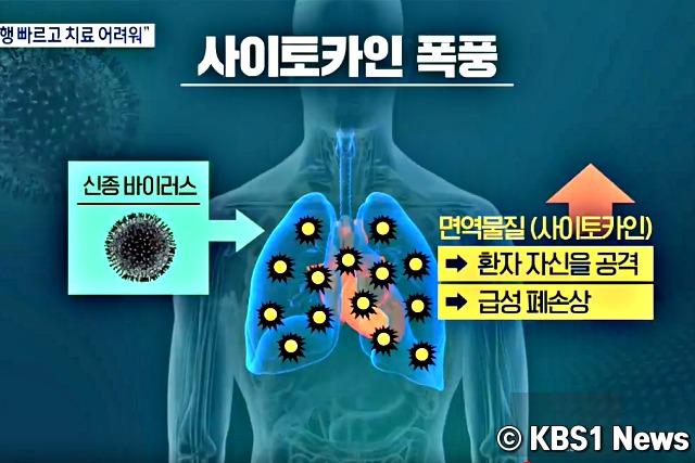 우한폐렴 증상, 코로나바이러스 증상, 건강, 팁줌 매일꿀정보