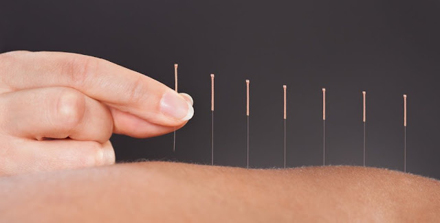 Types of Acupuncture