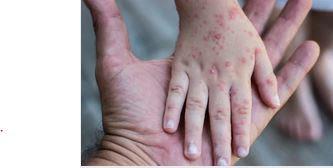 اعراض مرض الجدري  وطرق علاجه وكيفية الوقاية منه
