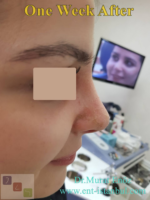 nose aesthetic surgery for female patient, rhinoplasty for women istanbul, nose job in Turkey, one week after rhinoplasty photos