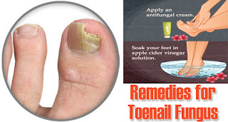 Causes of white toenail fungus and how to cure it toenail other causes of white toenail fungus sciox Gallery