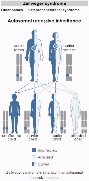 Sindrom Zellweger