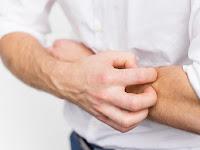 Membuat Si Alergi Agar Bisa Bersahabat dengan Pancaroba Menurut Prof. Dr. dr. Iris Rengganis, Sp.PD, KAI