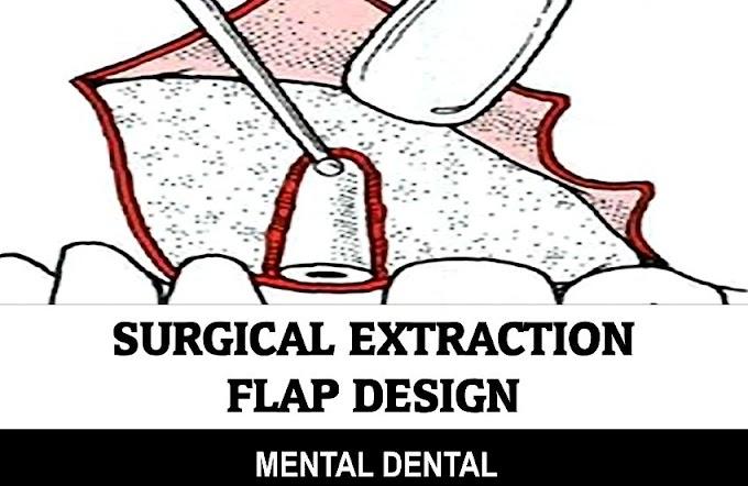 EXODONTICS: Surgical Extraction - Flap Design