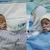 Sembilan Jam, Operasi Pemisahan Bayi Kembar Siam Asal Kendari
