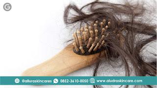 Cara Mengatasi Rambut Rontok Pada Remaja