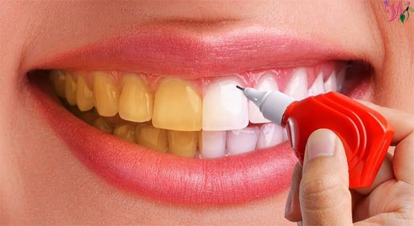 تبييض اصفرار الأسنان؟ نصائح لإزالة اصفرار الأسنان في المطبخ