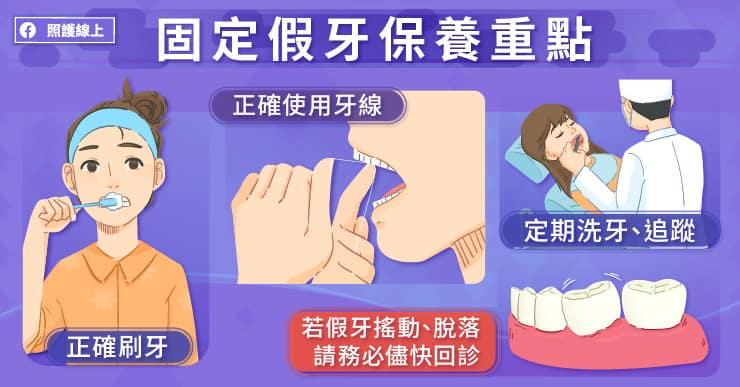 固定假牙保養重點