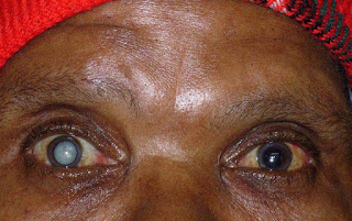Doctors- More Nigerians are likely to go blind except……