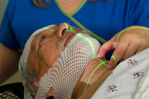 تقنيات الليزر لعلاج خلايا الدماغ السرطانية
