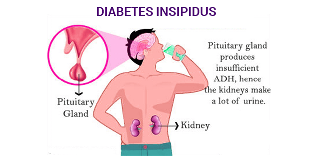 Menganal Diabetes Insipidus