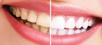 cuanto cuesta un blanqueamiento dental yahoo