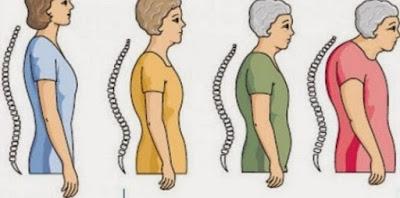Cara Alami Mencegah dan Mengatasi Osteoporosis Sejak Dini