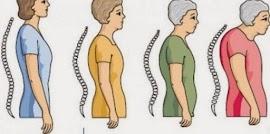 10 Tips Mencegah dan Mengatasi Osteoporosis Sejak Dini