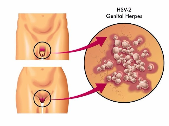 Symptoms, causes and effective treatment of Genital herpes.