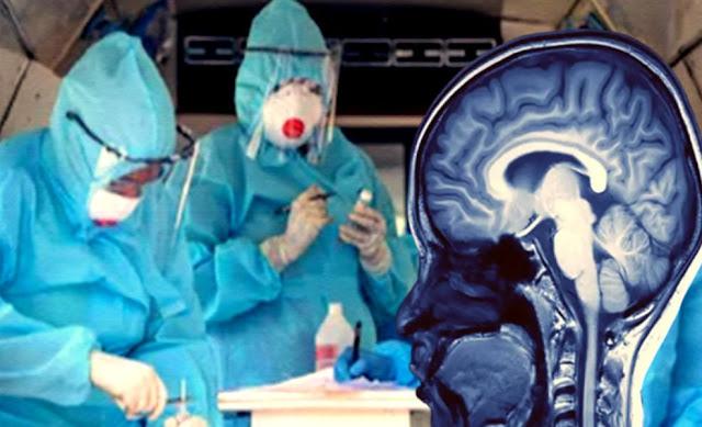 Primi dettagli del danno cerebrale nei pazienti COVID-19