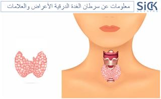 معلومات عن سرطان الغدة الدرقية الأعراض والعلامات
