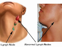 Cara Menghilangkan Benjoan Di Leher
