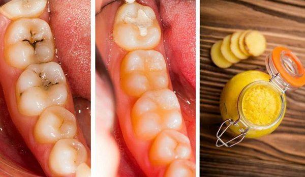 [ WAJIB SHARE ] Buat Kamu yang Giginya Berlubang dan Sering Sakit Gigi Inilah Cara Mencegah Dan Mengatasi Sakit Gigi Berlubang Dengan Kunyit..!!