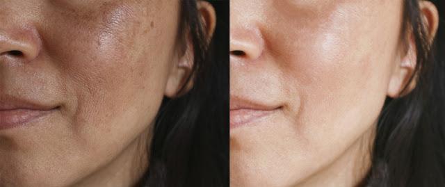 Visite chez le médecin quelles personnes sont les plus susceptibles d'avoir un cancer de la peau