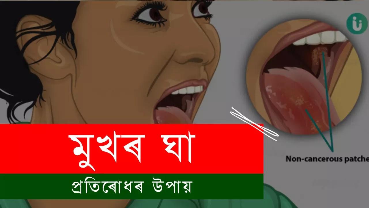 মুখৰ ঘা প্ৰতিৰোধৰ উপায় - Health Tips in Assamese
