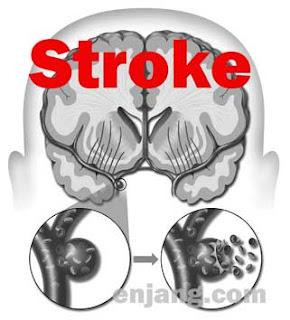 image: 10 gangguan sistem peredaran darah