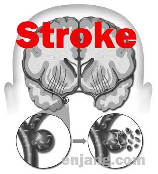 10 gangguan sistem peredaran darah