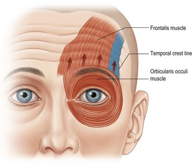 Xeomin can be used to relax the muscles that cause forehead wrinkles. It is similar, if not better than botox.