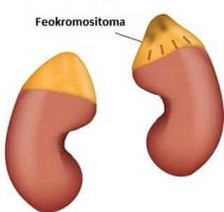 feokromositoma hastalığı
