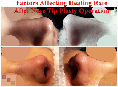 Nose Tip Plasty in İstanbul - Factors that may affect nasal swelling and healing after nasal aesthetics  - Nose Tip Plasty Operation İn Thick Skin Patients - Hot Season or Hot Climate For Nose Tip Plasty Operation - Smoking After Nasal Tip Plasty Operation - Heavy Exercise After Type Plasty Operation - Heavy Exercise After Tip Plasty Operation - Contact With Solar Radiation After Nose Tip Plasty Operation (UV-A UV-B) - Nasal Tip Plasty In Istanbul - Nasal Tip Plasty In Turkey - Nasal Tip Plasty Operation In Istanbul - Nose Tip Reshaping In Turkey - Nasal Tip Rhinoplasty Surgery - Nasal Hump Removal - Dorsal Hump Removal - Nasal Hump Reduction - Burun Ucu Estetiği İstanbul - Burun Törpüleme - Burun Kemeri Törpüleme