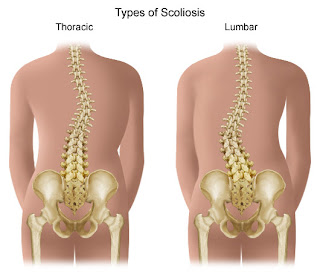 Nursing Assessment for Scoliosis
