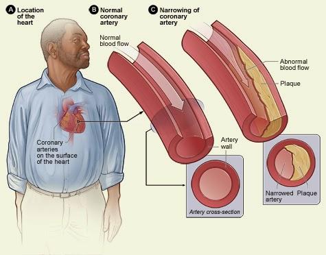Cara Cek Kesehatan Jantung