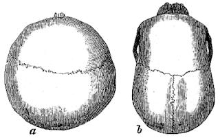 Cranio brachicefalo (a) e dolicocefalo (b)