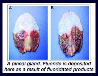 A fluorid hatásai az emberi szervezetre
