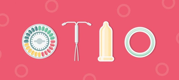 Limpopo is facing shortage of Condoms injectable contraceptives