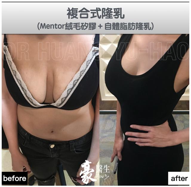 複合式果凍矽膠隆乳案例分享:Mentor絨毛矽膠+自體脂肪隆乳