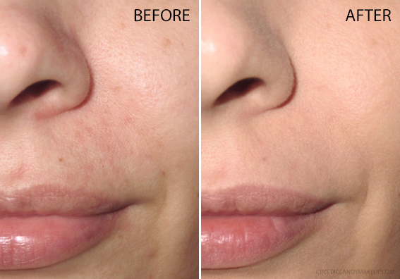 Rodial Skin Lift Foundation Review Before After
