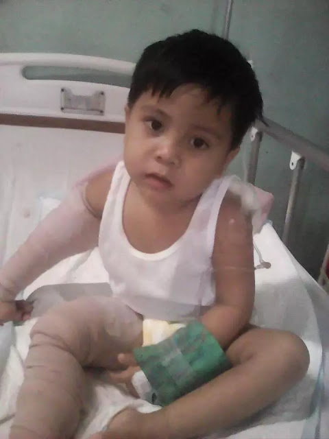 You Will Be in Awe Once You See This 3-Year-Old's Head Wound! His Father Is Desperately Pleading for Help!