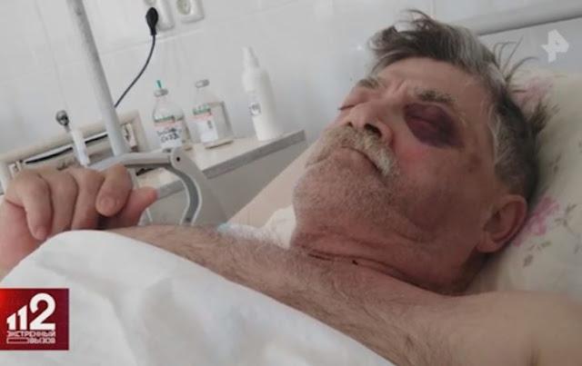 Как депутат с Урала избил до комы пенсионера во время отпуска в Крыму