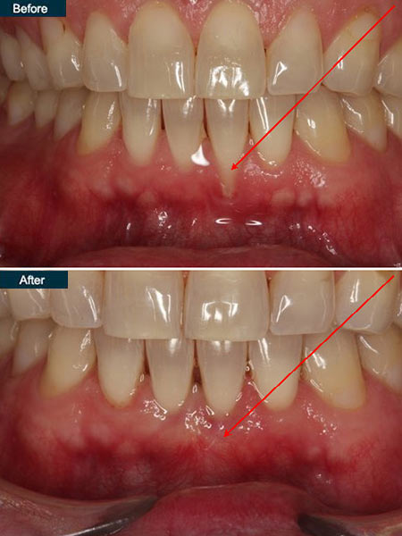 gum-grafting-dental-implant-nha-khoa-thuan-kieu