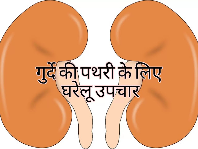 गुर्दे की पथरी के लिए घरेलू उपचार-kidney stone home remedy