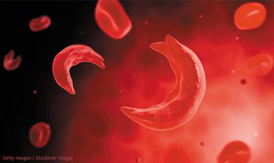 Δρεπανοκυτταρική και Μικροδρεπανοκυτταρική Αναιμία