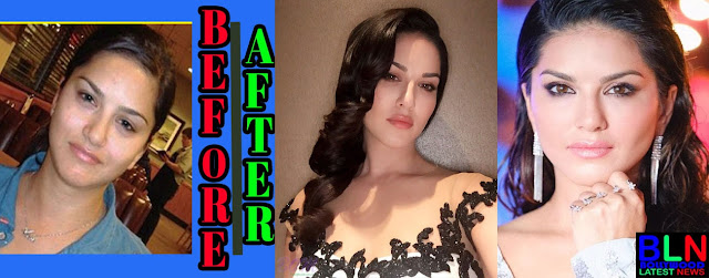 SUNNY LEONE Bollywood Actresses Before and After Plastic Surgery