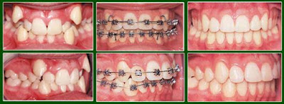Các trường hợp niềng răng hiệu quả bạn nên biết