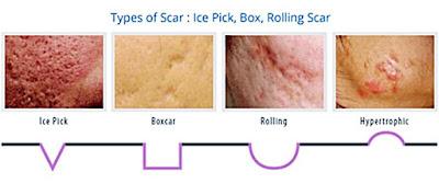 Sẹo mụn và cách điều trị