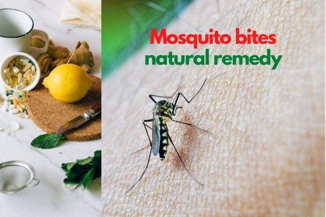 mosquito bites natural remedy