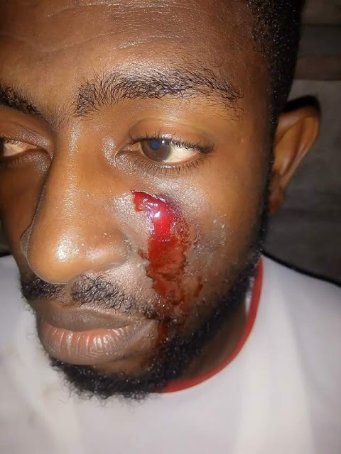 Photos: 36-year-old Bayelsa governorship aspirant allegedly attacked by suspected armed robbers