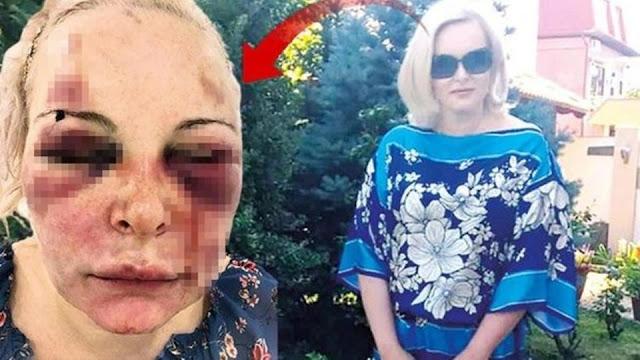 Отрежу тебе лицо: любовник два дня истязал россиянку в отеле в Турции